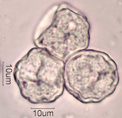 Elm (Ulmus sp.) Pollen Under the Microscope