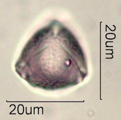 Ceanothus tomentosus Pollen Under the Microscope