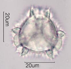 Flax (Linum lewisii) Pollen under the Microscope