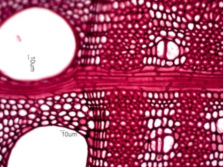 Gleditsia triacanthos, Cross-Section