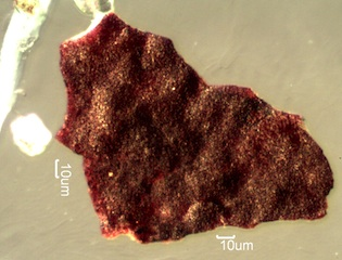 Iron Mill Scale Under the Microscope