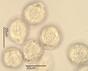 Lilac (Syringa vulgaris) Pollen Under the Microscope