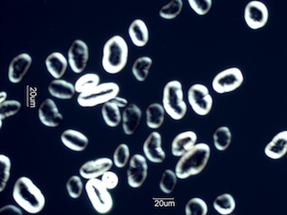 Pea Starch Under the Microscope