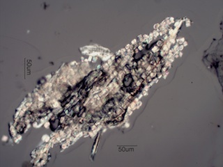 Calcium Oxalate Prisms in a Plant Fragment