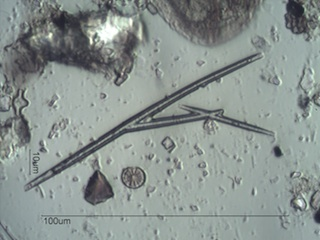 Freshwater Sponge Spicule Under the Microscope