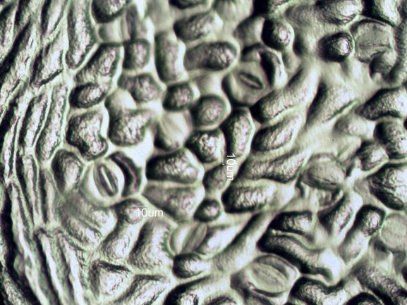 Stomata Under The Microscope